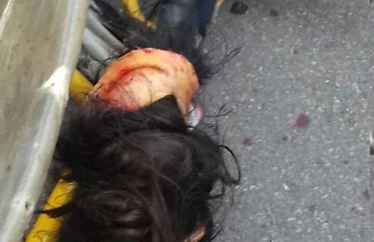 Menina de 12 anos tem couro cabeludo arrancado em acidente de kart ( Imagens fortes)