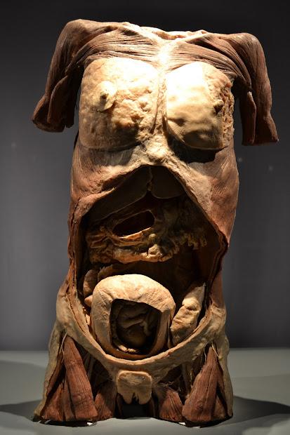 Human Bodies Exhibit