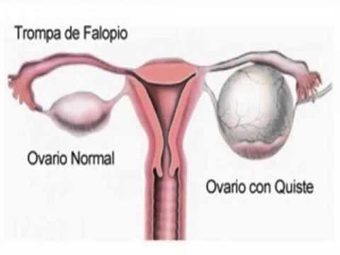 quitar un ovario por un quiste