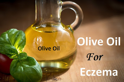 Olive Oil For Eczema, Eczema, How To Get Rid Of Eczema, Home Remedies For Eczema, Eczema Treatment, Eczema Home Remedies, How To Treat Eczema, How To Cure Eczema, Eczema Remedies, Remedies For Eczema, Cure Eczema, Treatment For Eczema, Best Eczema Treatment, Eczema Relief, How To Get Relief From Eczema, Relief From Eczema, How To Get Rid Of Eczema Fast,