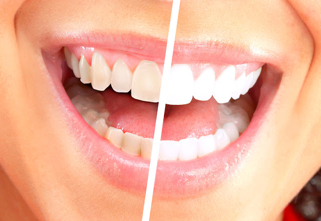 Teeth whitening treatment image