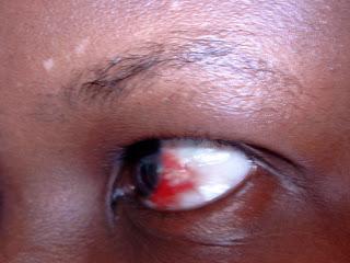 Subconjuctival hemorrhage Nairobi Kenya