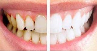 membersihkan karang gigi