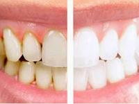 Cara Membersihkan Karang Gigi atau Plak Gigi Tanpa Pergi ke Dokter