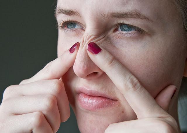 Kinh nghiệm trị mụn đầu đen hiệu quả bằng Kem Đánh Răng