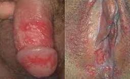 http://de-natur-indonesia.blogspot.com/2017/05/luka-mengoreng-pada-penis-dan-vagina.html