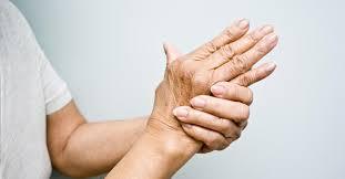 Cara Mengobati Artritis Sika