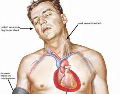 Kalp Yetmezliği Belirtileri ve Komplikasyonları