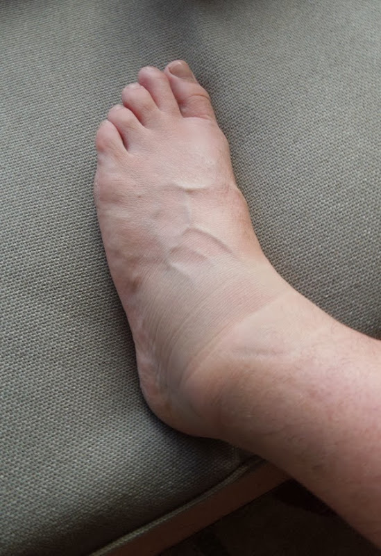Swollen left ankle