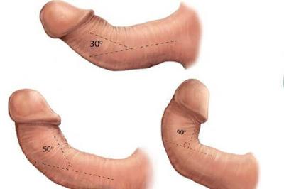 Cong vẹo dương vật có gây ảnh hưởng quan hệ tình dục không
