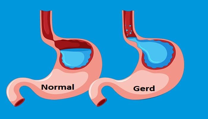 gambar penyakit gerd asam lambung tinggi