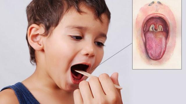 Beragam Gejala Difteri dan Pengobatannya pada Anak