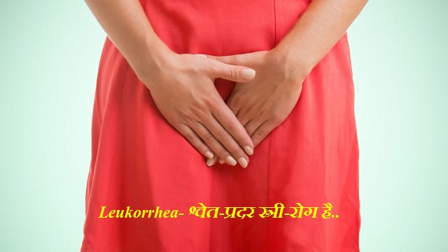 Leukorrhea-श्वेत-प्रदर