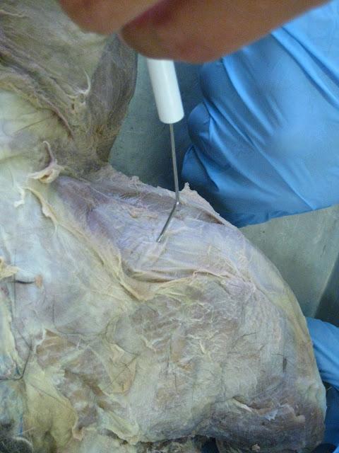Kitty Cadaver: Cat Muscles - fascia lata (*NOT a muscle ... | 480 x 640 jpeg 77kB