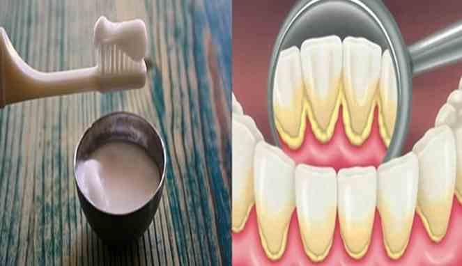 Campur Odol Dengan Ini Gigi Kuning Jadi Putih Dalam Sebulan