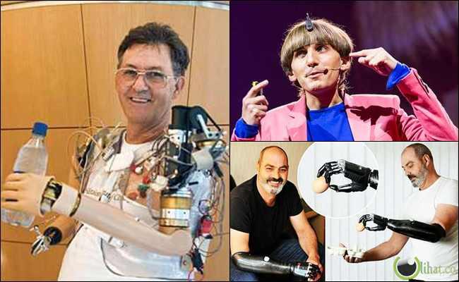 5 Orang yang Bagian Tubuhnya Digantikan oleh Mesin Robot