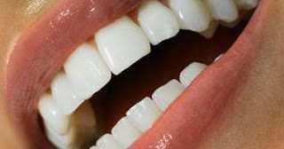 هل تعاني من اصفرار الأسنان - اليكم أفضل طريقة لتبييض الأسنان