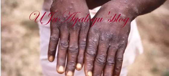 BREAKING: Outbreak of monkeypox hits Bayelsa, 10 persons quarantined