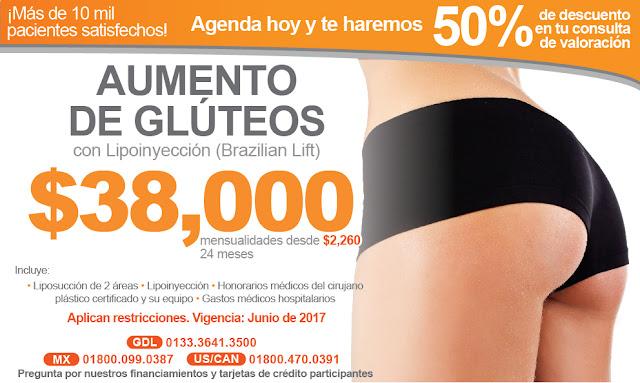lipoinyeccion grasa en gluteos aumento brazilian lift en guadalajara mexico