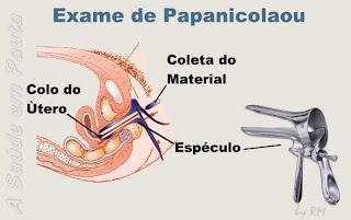 Exame de Papanicolau. Prevenção contra o câncer de colo de útero.