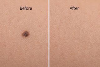 mole on woman skin before after laser treatment