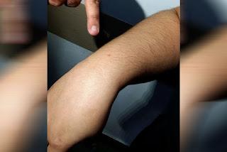 Sobe para 56 o número de supostos feridos por agulhas em CG e atacados se negam a depor