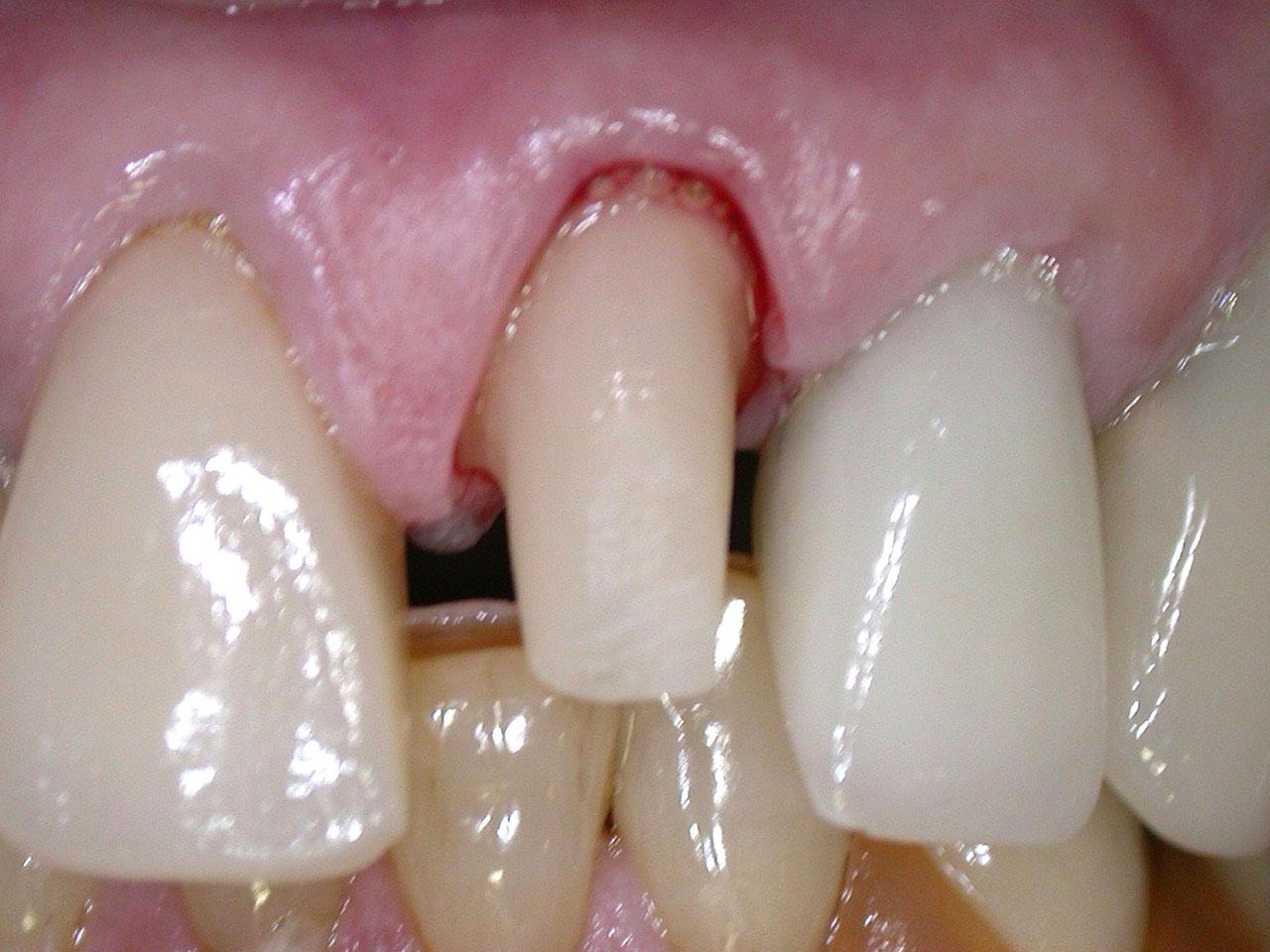 福井歯科 矯正歯科クリニック: グラスファイバーポストレジンコア