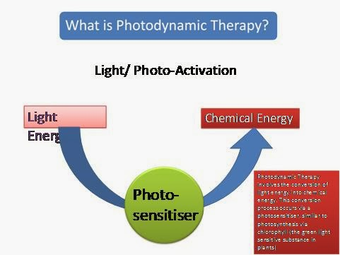 What Is Sonophotodynamicphoto Therapy (SPDT)?
