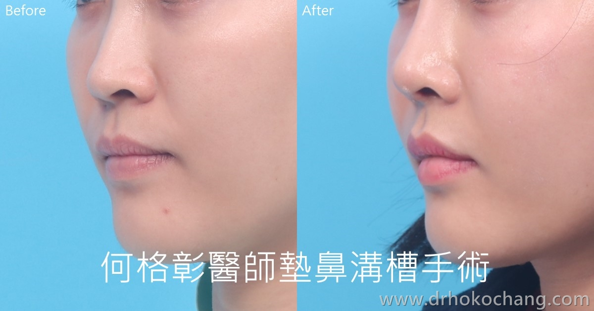 台中墊鼻溝槽法令紋手術|複合式墊鼻溝槽手術打擊深深法令紋-paranasal05