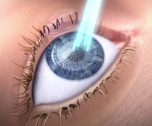 91676e2903 Laser Διόρθωση μυωπίας-αστιγματισμού-υπερμετρωπίας Διαθλαστική χειρουργική
