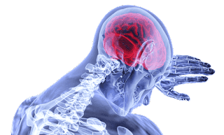 Brain Stroke, Types of, Symptoms, and Treatment.