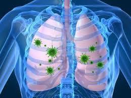 obat infeksi paru herbal