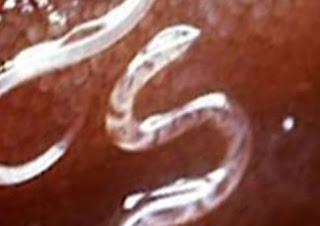 كيف تقتل الديدان في بطنك وتطردها