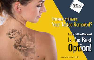 https://www.anew.co.in/our-treatments/laser-for-tattoo-removal