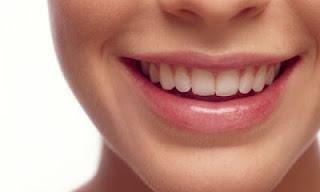 Cara Ampuh Memutihkan Gigi