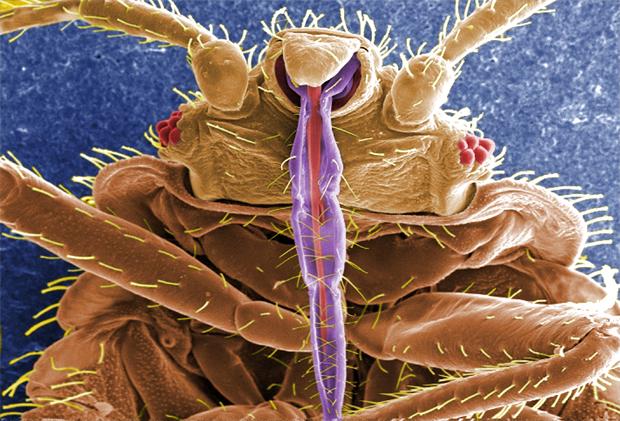 kuman-dilihat-mikroskop