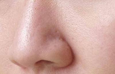 tips mengecilkan pori-pori kulit pada wajah
