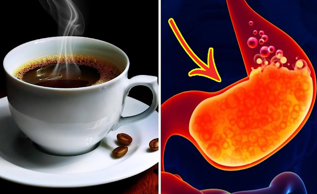You Really Should Not Drink Coffee on an Empty Stomach