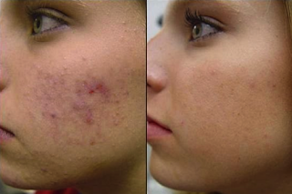 If you are injured, your skin will be difficult to heal and take a long time