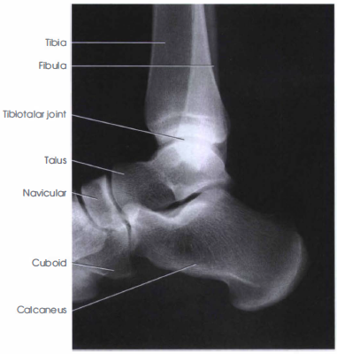 Lateral Projections Ankle Xray Radtechonduty