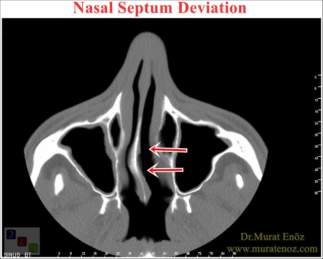 Nasal Septum Deviation - Symtoms of Nasal Septum Deviation - Treatment of Nasal Septum Deviation - Septoplasty Operation