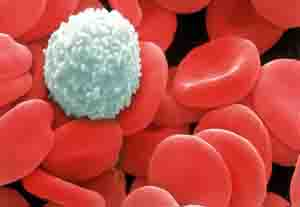 Blood Cancer Stages