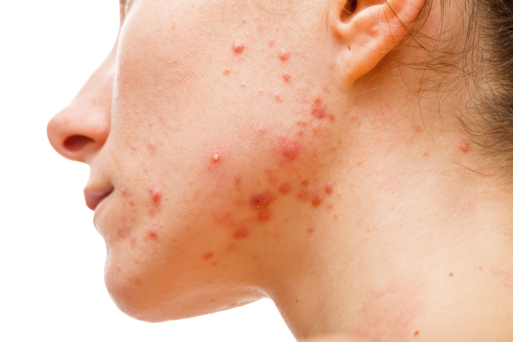 How to get rid of acne behind ears 2017 the perfect combination in the event of an hiv infection as soon as the antifungal medications arent effective a medication named amphotericin b might be recommended ccuart Images