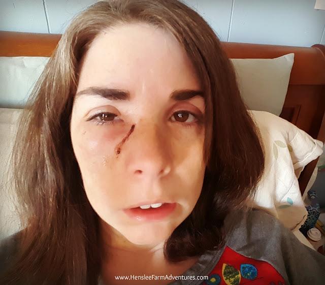 A Surgery Update   www.hensleefarmadventures.com