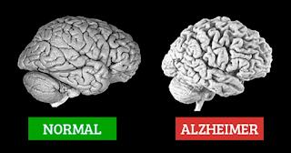Sekilas tentang Demensia Alzheimer