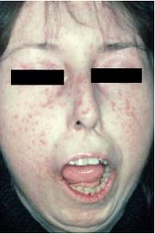 scleroderma-face