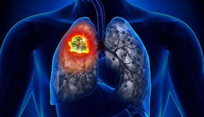 4 Hal Sepele Ini Bisa Picu Kanker Paru-Paru