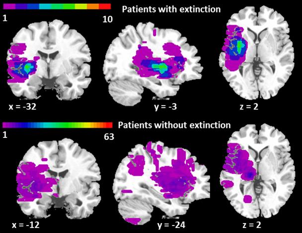 図:感覚消失の起きやすい脳の部位