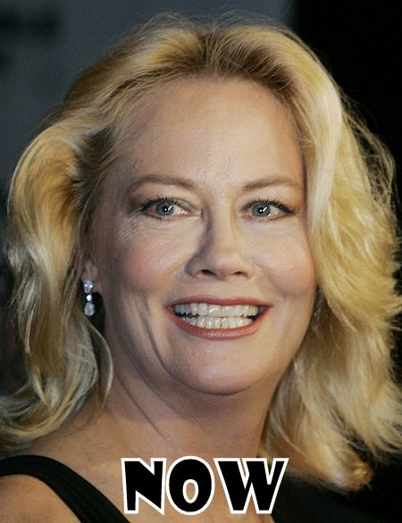 Cybil Sheppard Plastic Surgery Before And After Botox