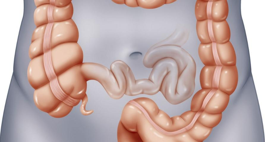 Stages Of Colon Cancer Life Expectancy
